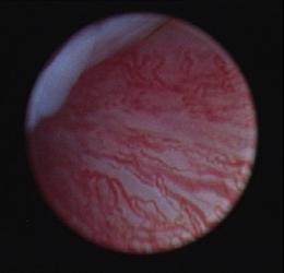 Abb. 1 Bild durch die Kamera (Arthroskop) in einem Kiefergelenk. Es zeigt Gefäße im Bereich der Gelenkkapsel