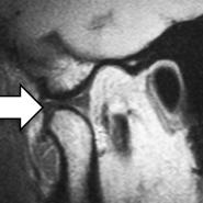 Abb 2b MRT-Bild eines gesunden Gelenks bei geöffnetem Mund. Die Diskusscheibe (Pfeil) liegt auf dem Kieferköpfchen.