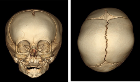 Abb. 6  Lagerungsbedingte Deformität / Plagiocephalus