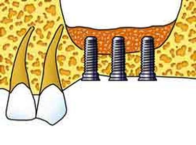 In Abb. 2 ist erkennbar, dass 3 Implantate im Oberkieferseitzahnbereich gesetzt wurden und zusätzlich ein Knochenaufbau mit Anheben der Kieferhöhlenschleimhaut durchgeführt wurde. Mit Knochenersatzmaterial (orange) wurde die Knochenhöhe aufgebaut.