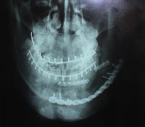 Abb.2 Röntgenbild nach einer Versorgung eines komplexen Unterkieferbruchs