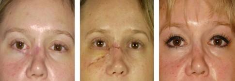 Narbenkorrektur nach einem Unfall