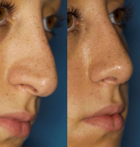 Abbildung Nasenkorrektur vorher und nachher