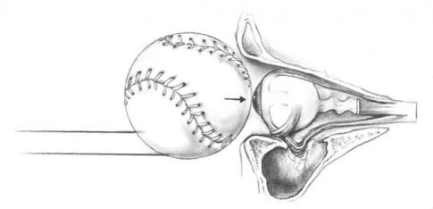 Augenhöhlenbruch durch einen Ball