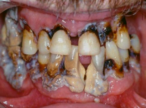 Abb. 1 ausgeprägte Parodontitis mit Zahnstein